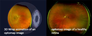 Optomap Digital Diagnostic Retinal Imaging (Columbia Office Only)